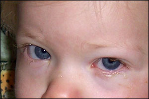 Baby's First Conjunctivitis